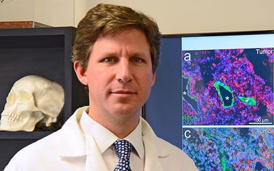 Study Seeks Path for Drugs to Reach Brain Tumors