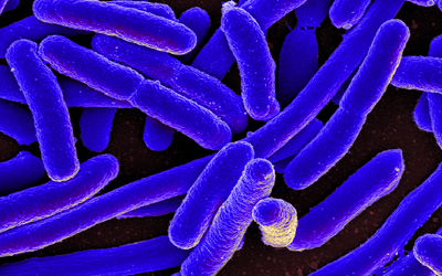 SOM Researchers ID Most Dangerous Bacteria
